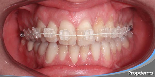 aparatos en ortodoncia