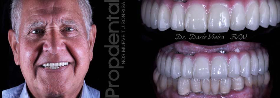 Caso clínico de dientes fijos de circonio