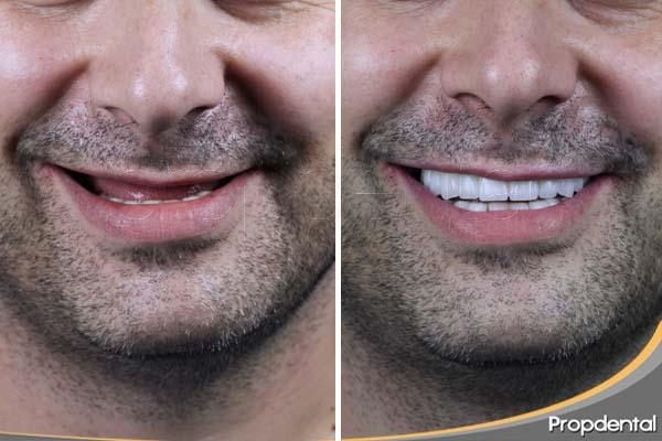caso clínico de implantes dentales barcelona