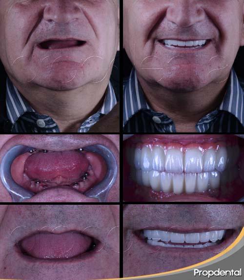 caso clínico de implantes dentales