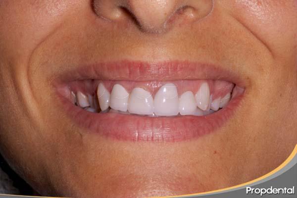 caso de estética dental inicial