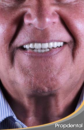 sonrisa del paciente de Propdental con implantes