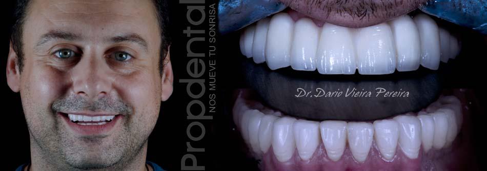 caso de implantes dentales
