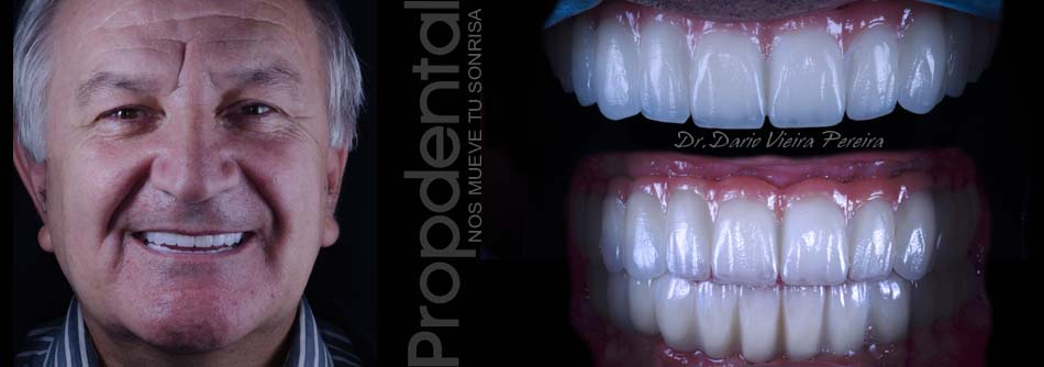 casos de prótesis sobre implantes
