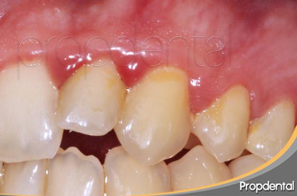 Clasificación de la gingivitis