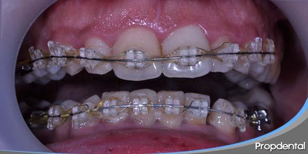 colocación de los aparatos ortodonticos fijos