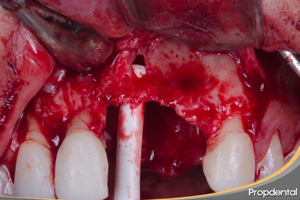 defecto-oseo-maxilar-anterior