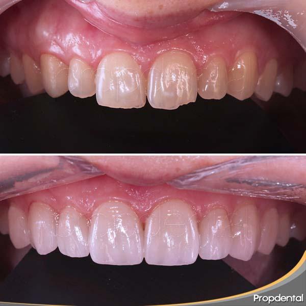 dental crowns price