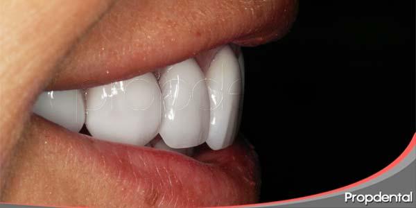dentista estético
