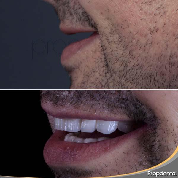 dientes fijos sobre implantes