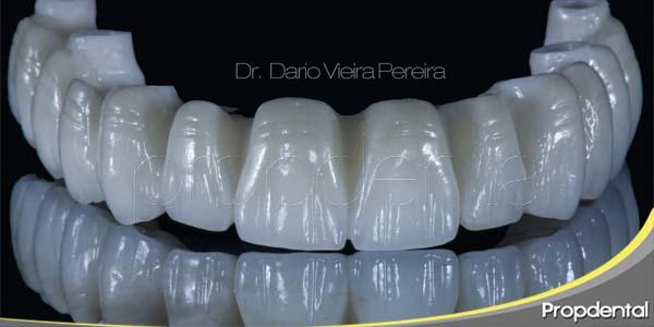 diseñar la sonrisa con implantes dentales