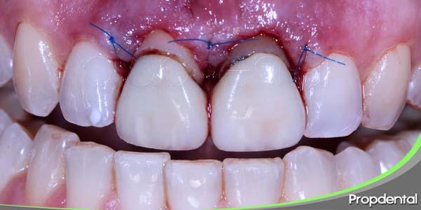 objetivo de la cirugía periodontal