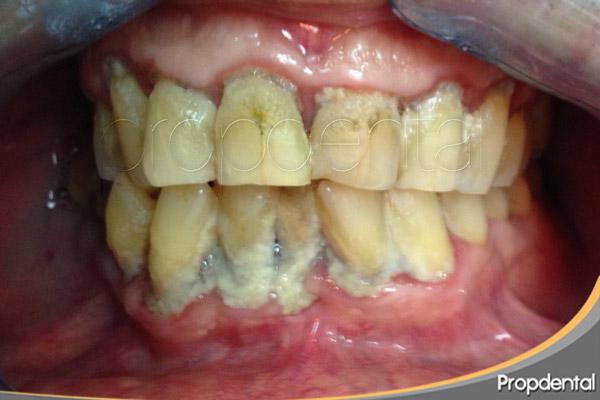perder dientes por piorrea