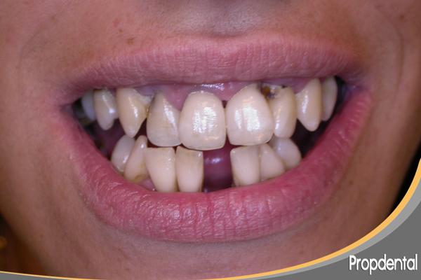 pérdida de dientes por piorrea