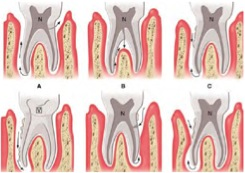 periodontitis asociada a lesiones endodonticas