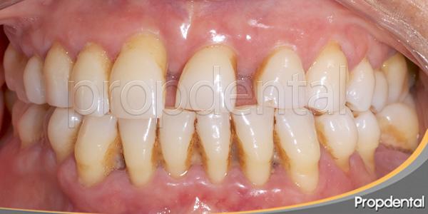 tratamiento de periodoncia de la periodontitis