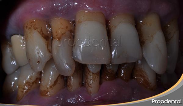 piorrea periodontitis