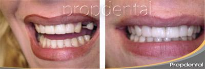 porcentaje de éxito de los implantes dentales