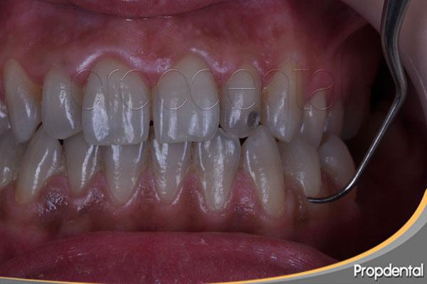 precio curetaje periodontal