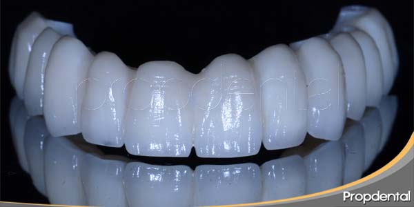 prótesis fija definitiva de circonio porcelana