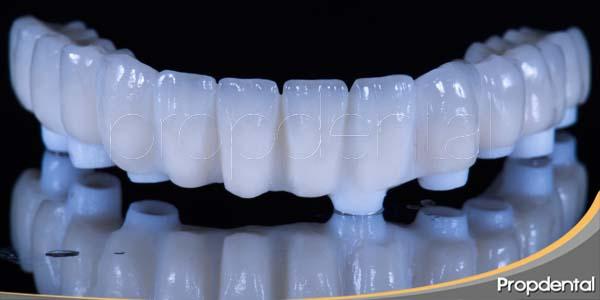 prótesis sobre implantes arcada inferior