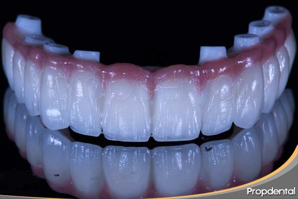 prótesis sobre implantes con encía rosa