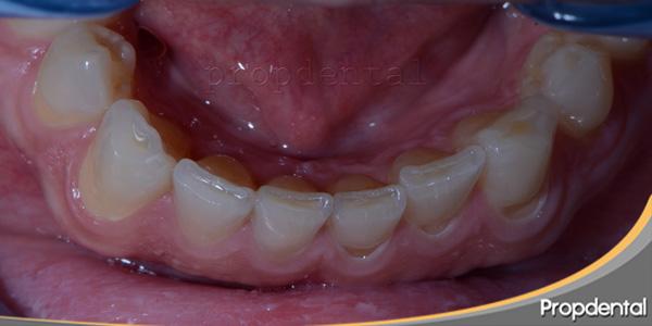 rechinamiento de los dientes
