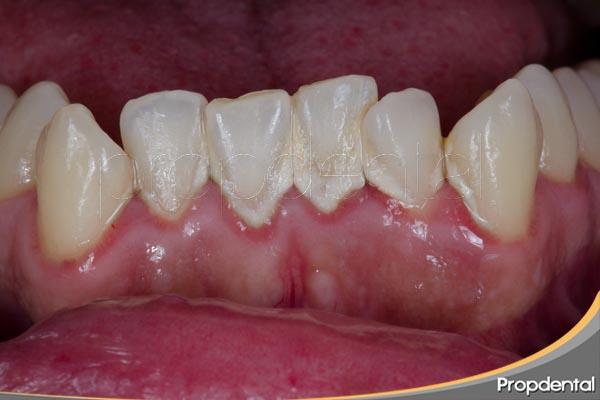 riesgo de la enfermedad periodontal