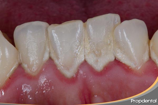riesgo sistémicos de la enfermedad periodontal