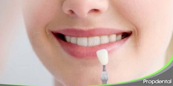 tipos de coloraciones dentarias