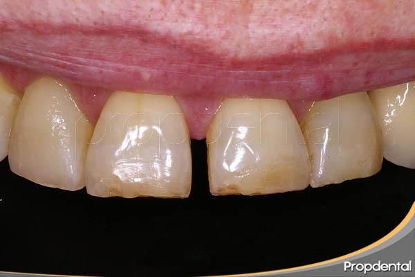 Cierre de espacios en ortodoncia
