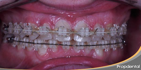 Alergia al níquel de los brackets metálicos de ortodoncia