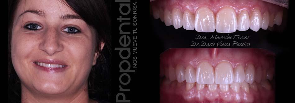 análisis en estética dental