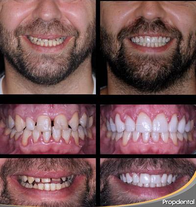 coronas dentales