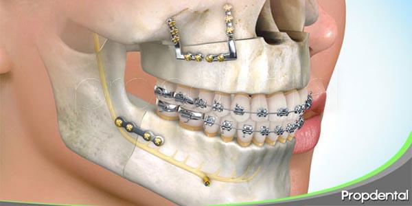 deformidades craneo maxilofaciales