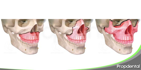 fracturas maxilofaciales