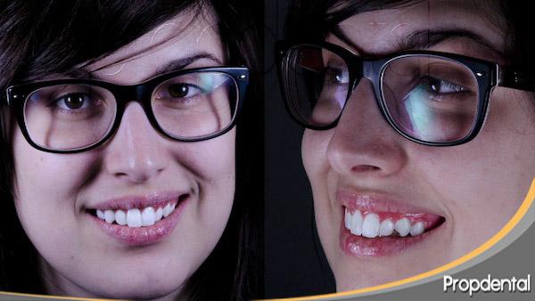 ortodoncia estética de mellow