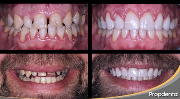 precio de coronas dentales en Barcelona