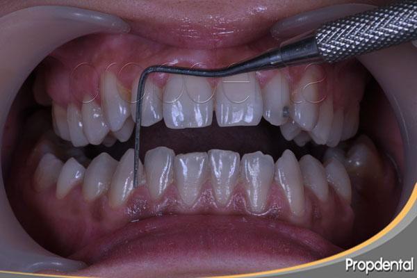 primera visita de periodoncia