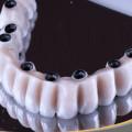 prótesis de metal porcelana sobre implantes dentales
