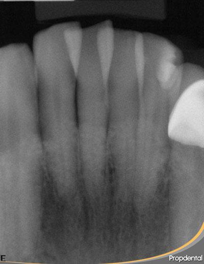 seriada radiografica incisivos inferiores