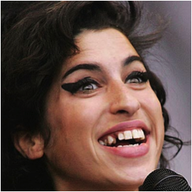 Amy Winehouse dientes