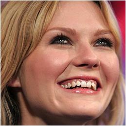 Kirsten Dunts dientes