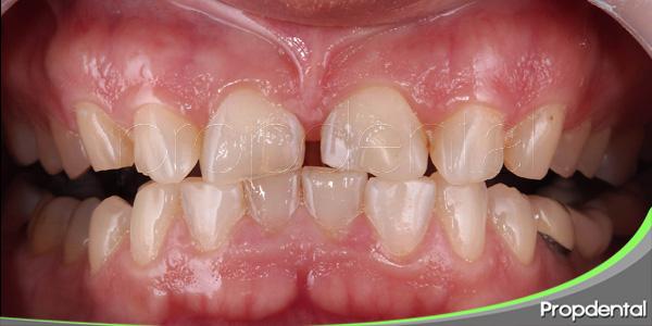 alteraciones en el tamano de los dientes