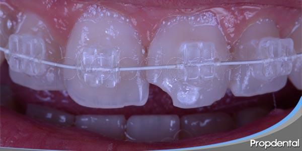 aparatos de ortodoncia fija