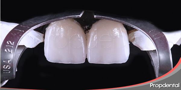 claves para una rehabilitación de estética dental