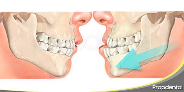consideraciones oclusales en implantes dentales