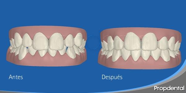 crecimiento en ortodoncia