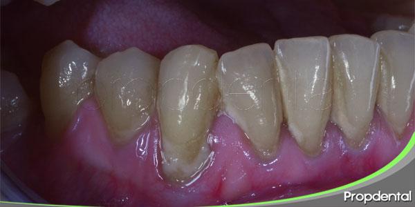 diagnóstico y tratamiento periodontal