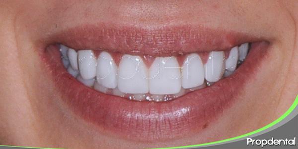 dientes para toda la vida